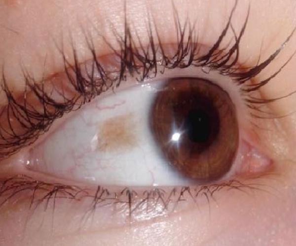 невус на роговице глаза