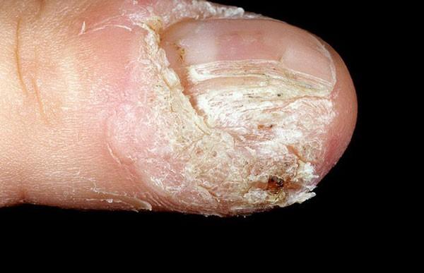 нарушение роста ногтевой пластины