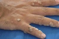 простые бородавки на коже рук