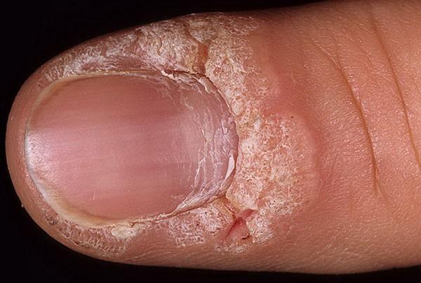 наличие трещин на пальцах, пораженных наростами