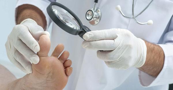 осмотр и дерматоскопия наростов на стопе