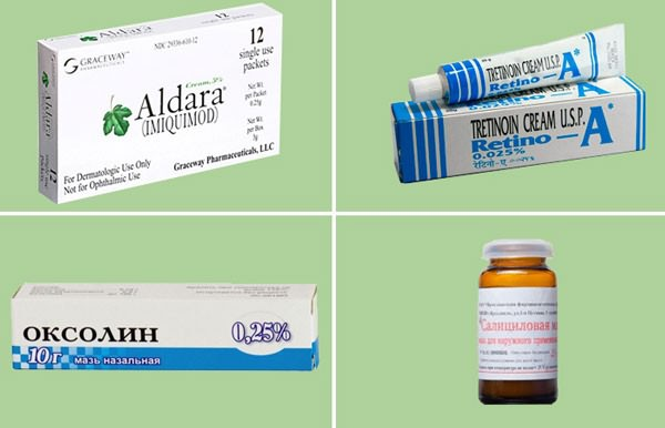 применение аптечных средств для удаления наростов