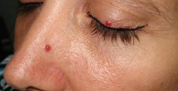 гемангиомы на лице