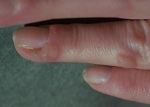 Что такое бородавка на пальце