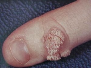 Появилась бородавка на пальце: причины