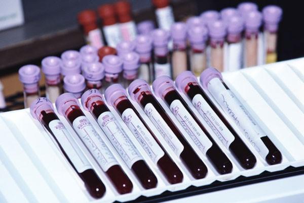 взятие крови для ПЦР диагностики