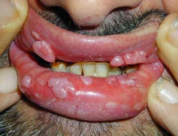 папилломы на слизистой губ