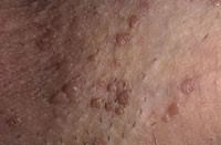 папиллома генитальная