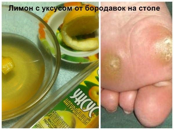 limon_ot_borodavok_na_stopach