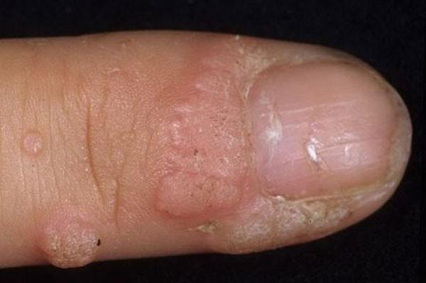 поражение ВПЧ пальцев рук