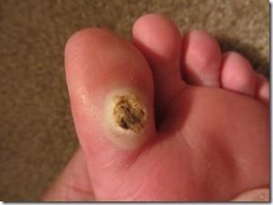 Большая бородавка на пальце ноги