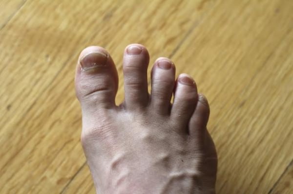 ноготь под ногтем