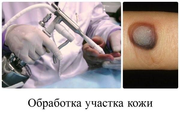 папилломавирус у мужчин лечение