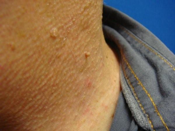 Папилломы на шее, лечение