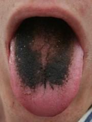 налет на языке при вич