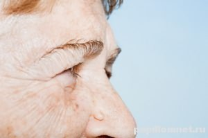 Фото бородавки на лице у пожилого человека