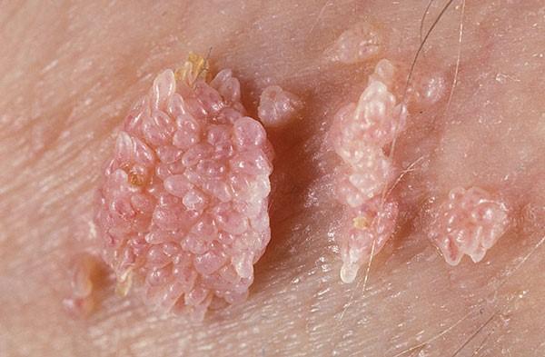 бородавки на гениталиях