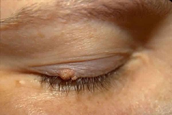 Бородавка на глазу