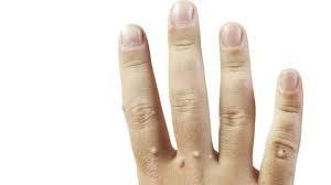 На пальцах новообразования
