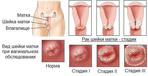 вирус папилломы при беременности