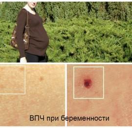 появились папилломы во время беременности