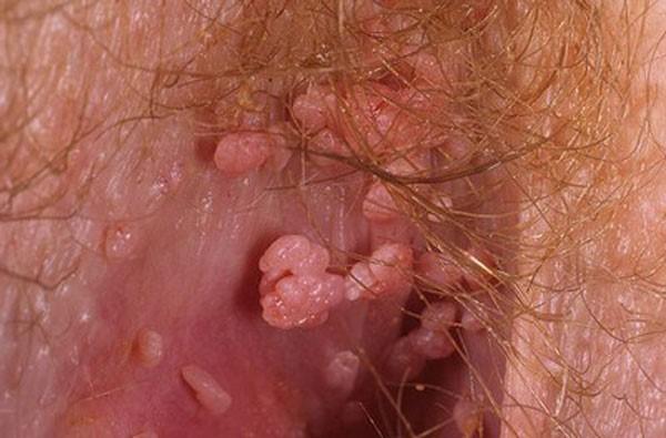 кондиломы на женских половых органах