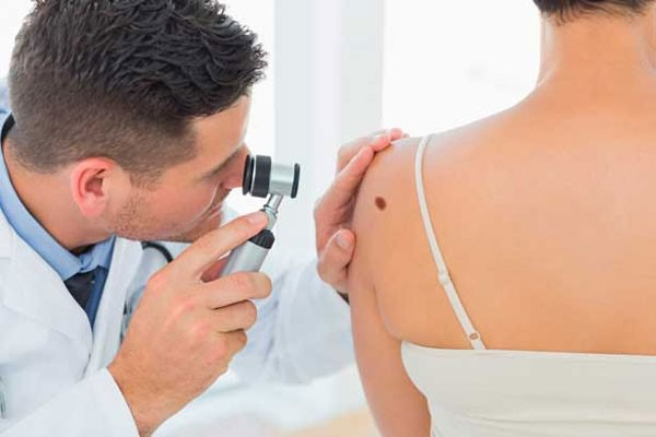 диагностика папиллом