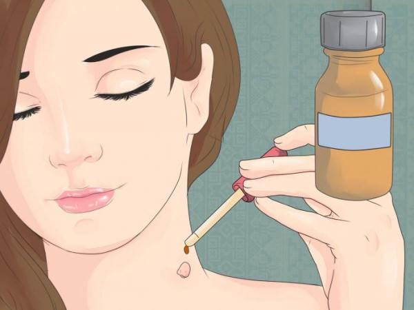 Папилломы на шее, лечение, отзывы