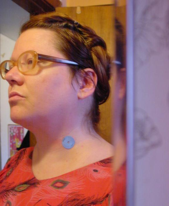 Лечение папиллом в домашних условиях народными средствами