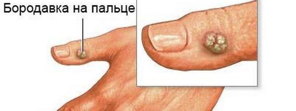 foto новообразования на пальце