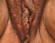 широкие кондиломы на малых губах у женщин фото