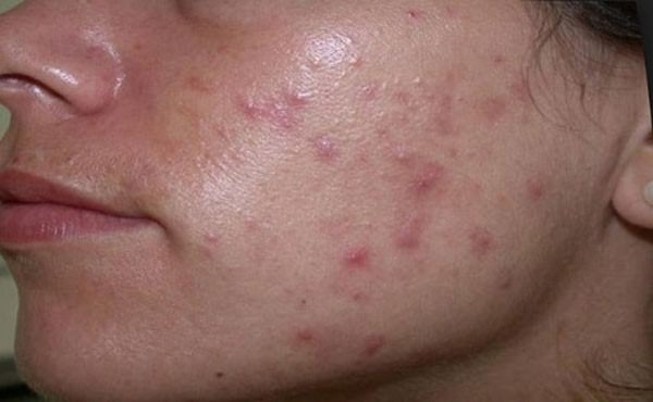 Стрептоцид рекомендуется использовать только для лечения жирной кожи