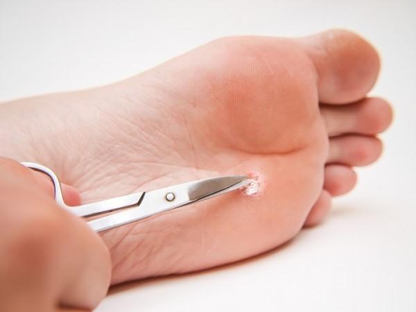 обрезание бородавок ножницами может спровоцировать осложнения