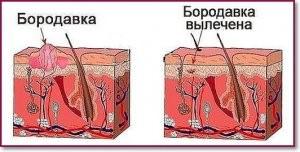 lechenie-borodavki