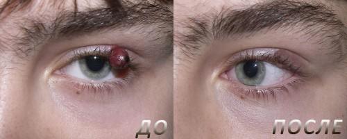 папилломы вокруг глаз