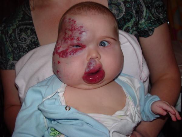 Комбинированная гемангиома у новорожденных