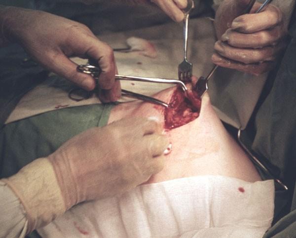 один из этапов операции секторальной резекции молочной железы