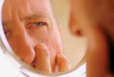 как распознать меланому признаки и симптомы