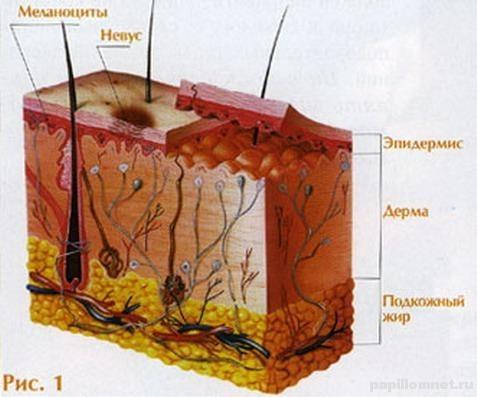 Схема кожного покрова с невусом