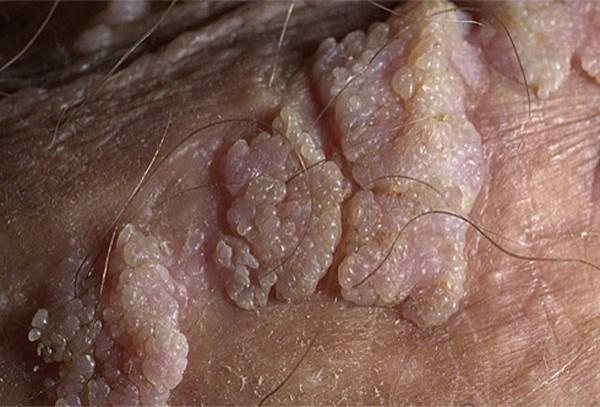 папиллома на половой губе