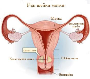 папиллома шейки матки фото