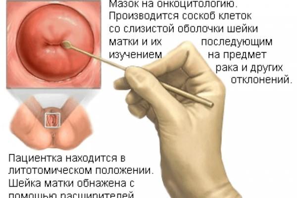 Задевает ли матку половой член при введении его во влагалище
