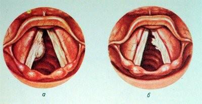 папилломавирус гортани