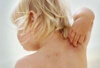 папиллома на спине у ребенка