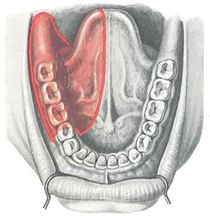 Стадии рака полости рта