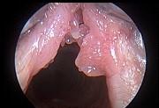 Плоскоклеточная папиллома гортани