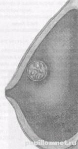 Фото схема проявления ВПЧ на груди