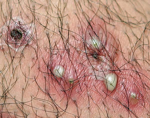 bolezni-v-intimnih-mestah