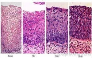 Фото изменения структуры тканей при папилломе шейки матки