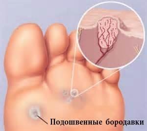 папиллома на ноге фото